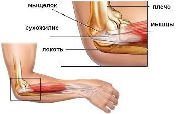 Травма локтевого сустава лечение народными средствами гимнастика для суставов рук