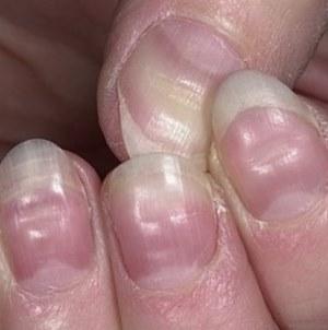 Фукорцин отзывы грибок ногтей на ногах