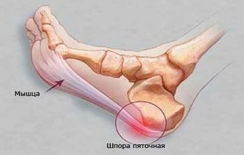 Лечение пяточных шпор процесс длительный и кропотливый.