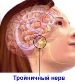 Как лечит народными средствами тройничный нерв