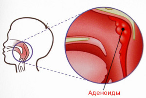 Рецепты народной медицины при аденоидах