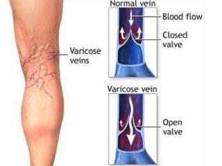 Варикобустер крем от варикоза отзывы отрицательные