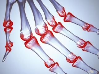 Симптомы артрита, развитие и народные методы лечения артрита