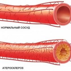 Атеросклероз в наше время стал настолько распространенным заболеванием, что его не без оснований называют бичом современного человека.