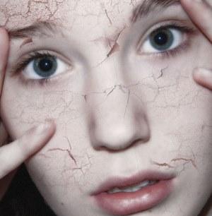 Обезвоживание кожи лица - причины, симптомы, способы ухода.