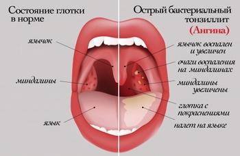 Ангина - заболевание инфекционное, передающееся воздушно-капельным путем.