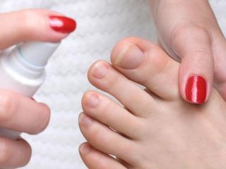 Грибок ног: советы народной медицины