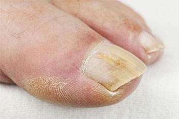 Лечение грибка ногтей на ногах быстро