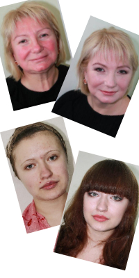 Прыщи, угри и покраснения можно скрыть при помощи макияжа