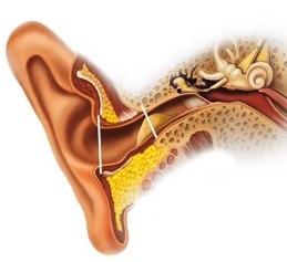 Серная пробка в ушах не только снижает качество жизни, но и может стать причиной серьезных недомоганий