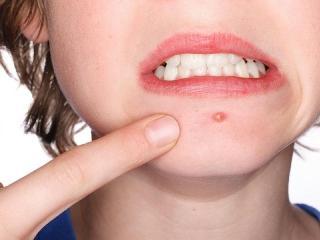 Угревая сыпь и прыщи. Лечение угревой сыпи, прыщей  и уход за кожей лица (женские секреты красоты)