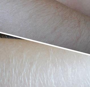 Волосы на теле чем осветлить