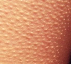 На первый взгляд мелкая сыпь, которой усеяна вся кожа, кажется естественной - ведь она всю жизнь проявлялась у нас, когда было холодно или страшно.