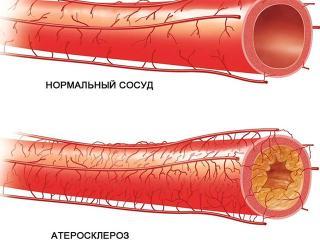 """Атеросклероз - """"ржавчина жизни"""". Как возникает атеросклероз (женское здоровье)"""