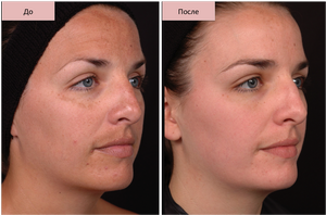 Пигментные пятна на лице и теле причины и лечение фото