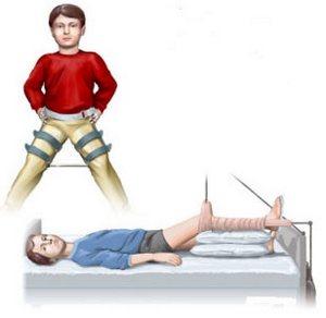 Боль с коленке чем лечить
