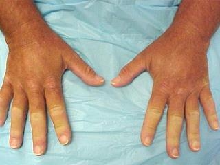 Склеродермия - недуг холодных рук