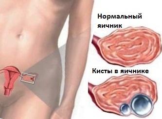 Народные средства для лечения больных ног