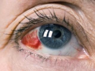 Лопнул сосуд в глазу: причины, лечение