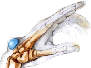 Гигрома запястья (кисти), стопы: причины, лечение