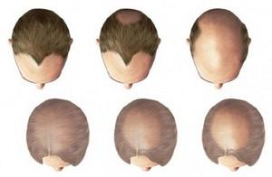 Репейное масло средство против выпадения волос