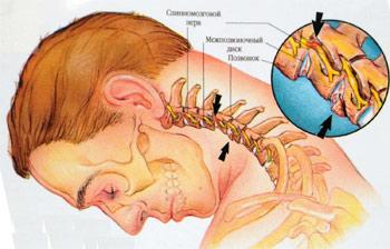 Тянущие боли на шее