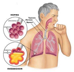 Заподозрить у себя начавшееся воспаление легких вы сможете, обнаружив у себя следующие симптомы
