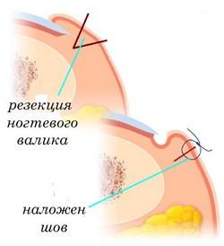 Чем лечить грибок внутри уха