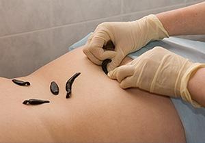 Можно Ли После Гирудотерапии Набрать Вес