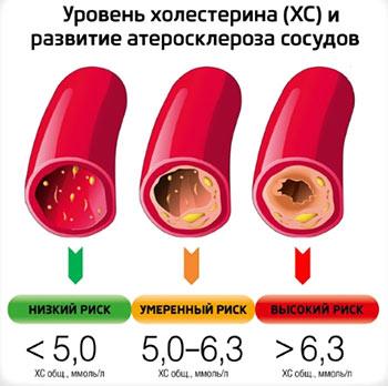 опасность холестерина в крови
