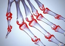 Комплексы упражнений при артрозе, артритах и коксартрозе